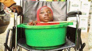 Murió la joven sin cuerpo que vivía en un balde