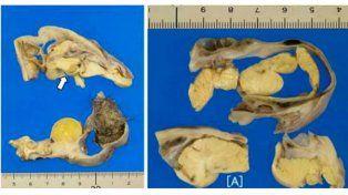 Hallan cerebro en miniatura en el apéndice de una joven.