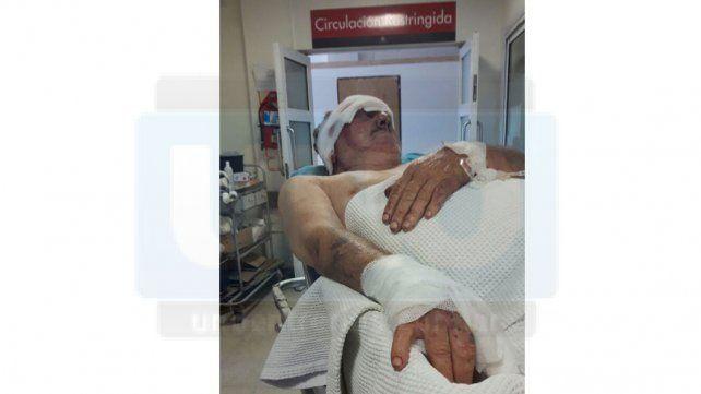 Sigue internado el taxista que golpearon con un palo para robarle 350 pesos