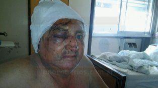 Conmovedor testimonio del taxista asaltado y golpeado con una maza