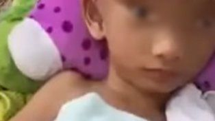 La impactante historia del niño que vive con la cabeza abierta