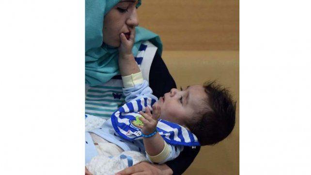 Operaron con éxito a un bebé que nació con ocho extremidades
