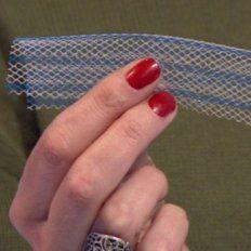 Los implantes de mallas vaginales por los que cientos de mujeres están en pleito en Reino Unido