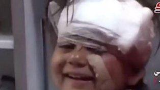 La adorable sonrisa a la cámara de una nena siria herida en el atentado en el que murieron 126 personas