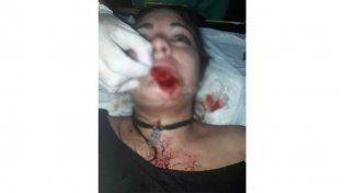 Se cruzó con su ex en un boliche y la desfiguró a mordiscones