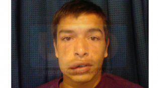 Lucas Martínez envió su foto a UNO mientras se recupera en casa.