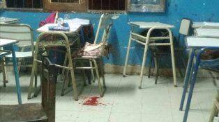Adolescente llevó un arma a la escuela y le pegó un tiro en la cara a una compañera