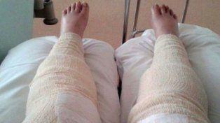 Casi le amputan las piernas por hacerse un cavado