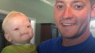 Murió el nene que nació sin nariz