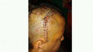 Uno de los lesionados en el brutal ataque del 3 de noviembre del año pasado