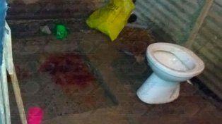 Encontraron un bebé muerto dentro de un balde