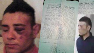 La hermana del joven atacado por la Policía en Gualeguaychú aseguró que lo picanearon