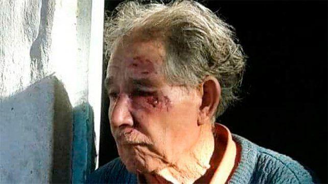 Un jubilado sufrió un violento robo en Tala