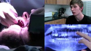 Mostró sus dientes luego de 20 años sin lavárselos
