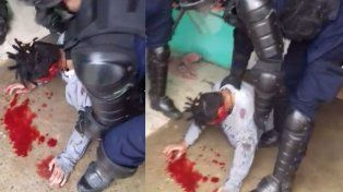 Pese a los esfuerzos médicos, el joven baleado por la Policía perdió el ojo