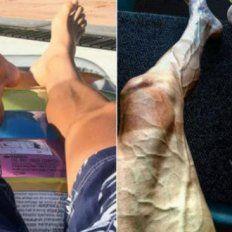 Impresionante cambio en las piernas de un ciclista