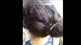 #EsViral El video de la chica con la cabeza llena de piojos que viaja en colectivo en México