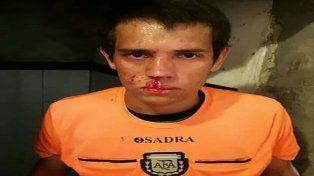 La cara del juez principal tras la agresión en el partido entre Victoria y Salto Grande.