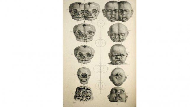 La extraña historia de Edward Mordrake, el hombre de dos caras