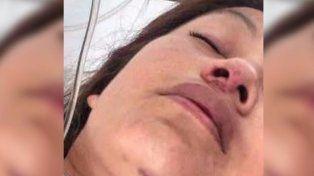 Una mujer se tiró de un segundo piso para evitar que su pareja la mate