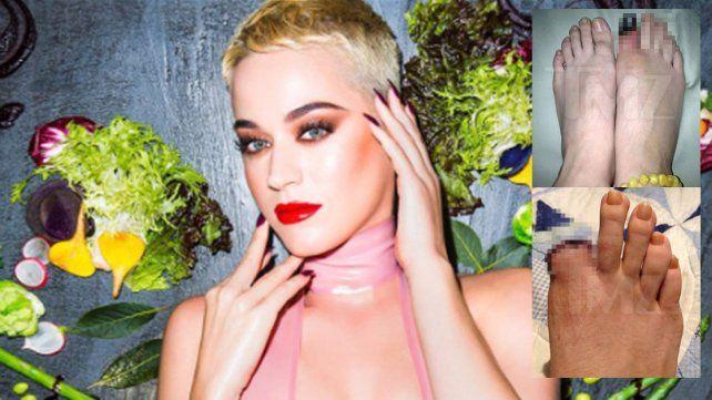 Gracias a Katy Perry, sólo tengo 9 dedos