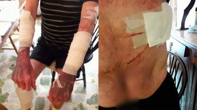 Apuñalaron, golpearon y ahorcaron a un hombre de 64 años para robarle