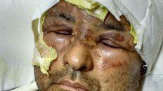 Secuelas. El Policía sufrió quemaduras leves en gran parte del rostro.