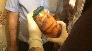 Investigación. El interior del frasco será analizado.