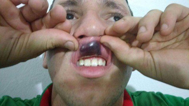 Ferreyra expulsó a Muñoz del club Quinto Cuartel y este lo agredió con un golpe de puño.