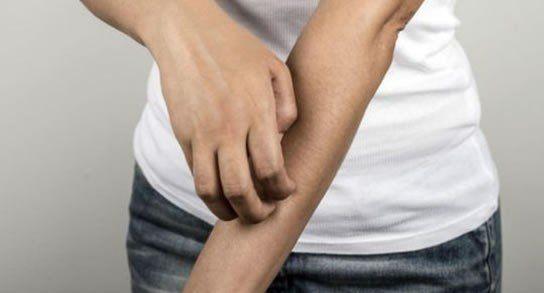 La escabiosis es una enfermedad de la piel causada por un ácaro.