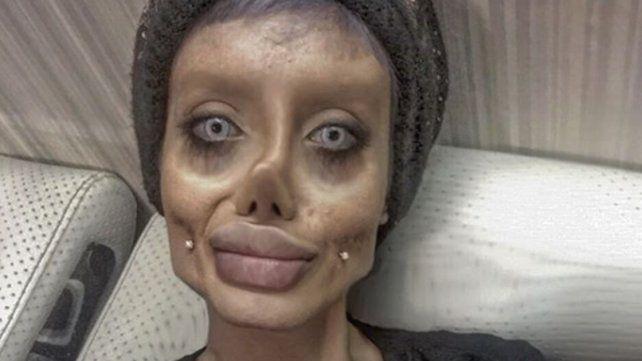 Una joven iraní se sometió a 50 cirugías para parecerse a Angelina Jolie