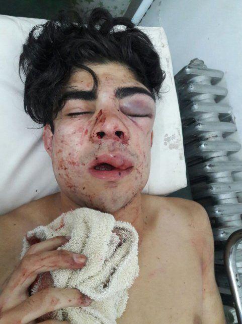 Un chico fue salvajemente golpeado por una patota porque lo creyeron chileno