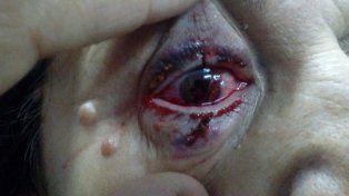 Dos traumatismos oculares graves de adultos de La Paz, por pirotecnia