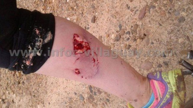 Un pitbull la atacó cuando pasaba en moto