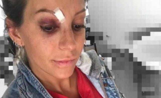 Duele con sólo verlo: el tremendo accidente de Noelia Marzol en el escenario