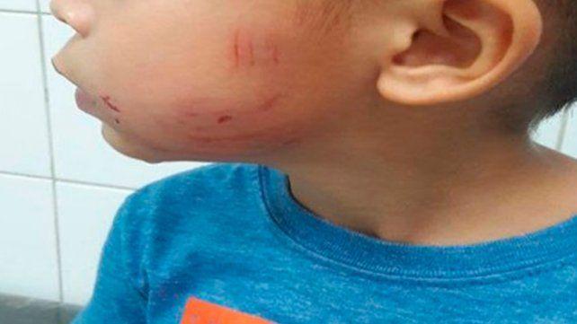 Nene de 3 años fue atacado por un perro en la vía pública
