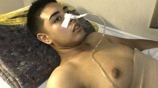 Gonzalo Nahuel Sala tiene 19 años y está internado desde el domingo.