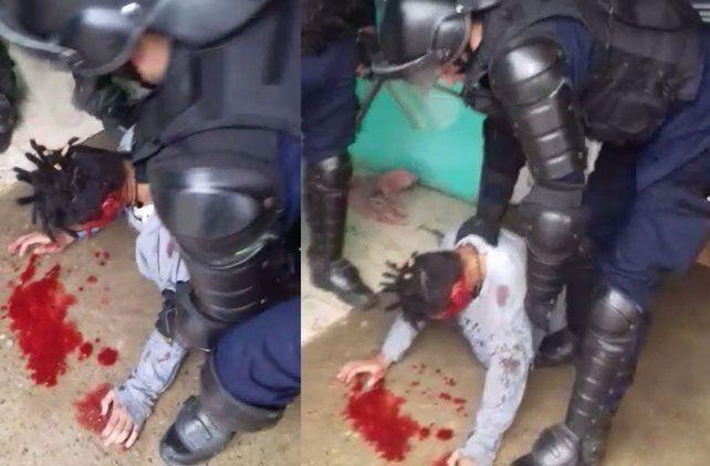 Sin justificación. El Grupo Especial de la Policía baleó en el rostro antes de reducir a un adolescente en crisis