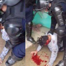 Sin justificación. El Grupo Especial de la Policía baleó en el rostro antes de reducir a un adolescente en crisis, de no más de 50 kilos.
