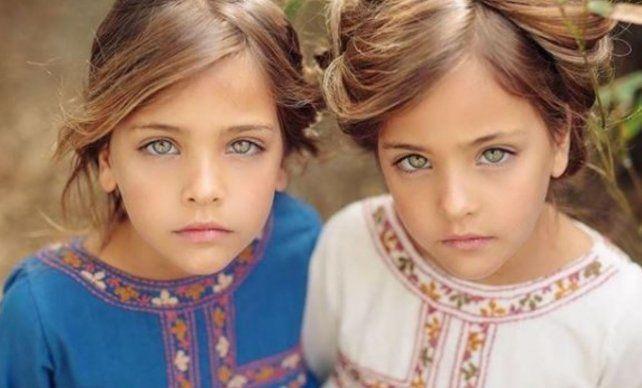 Las gemelas más hermosas del mundo que cautivan a Instagram