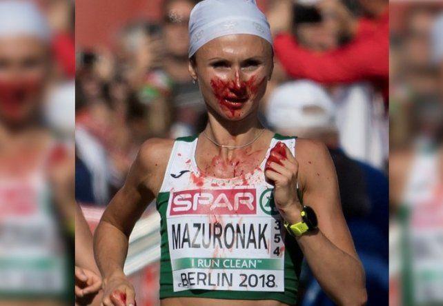 Ganó la carrera tras sufrir una hemorragia nasal