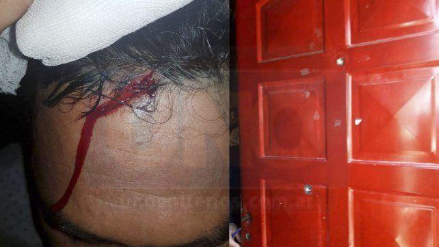 Golpe y tiros. El golpe a Franco y una puerta agujereada a balazos.