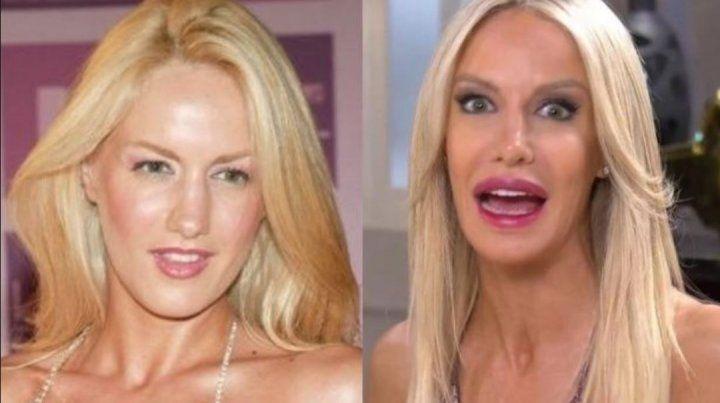 Estos famosos admitieron sin dramas sus cirugías estéticas
