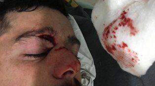 Al hospital. Telechea resultó lesionado y tuvo que ser asistido. Foto El Dia