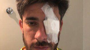 Lesionado. Pérez sufrió cortes en el ojo