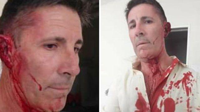Un municipal golpeó al director de la Unidad N° 2