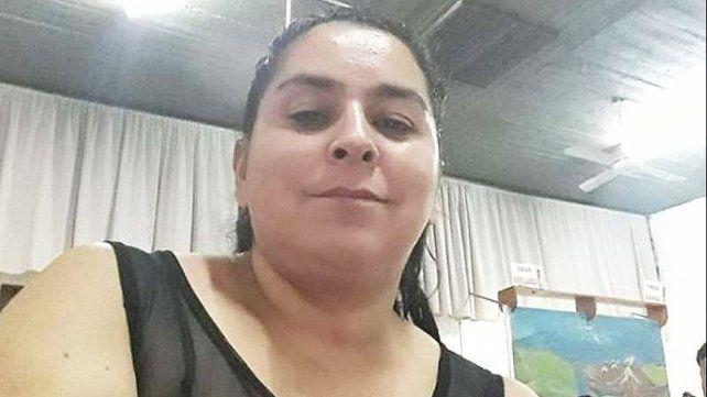 Otro caso. Vanesa Caro, sufrió quemaduras en el 70% de su cuerpo al ser prendida fuego delante de sus cuatro hijos en la localidad bonaerense de Ingeniero Budge.
