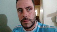 agmer parana repudio el ataque al ecologista elio kohan, docente activo contra las fumigaciones