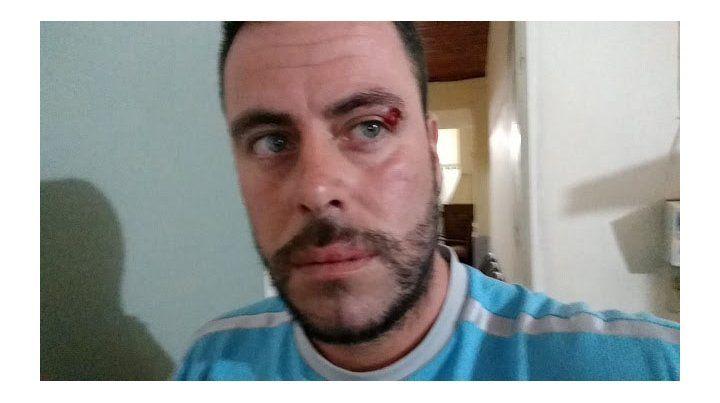 Agmer Paraná repudió el ataque al ecologista Elio Kohan, docente activo contra las fumigaciones