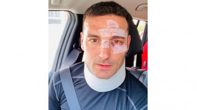 Lionel Scaloni sufrió un accidente de tránsito